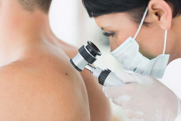 Badanie dermatoskopowe pacjenta